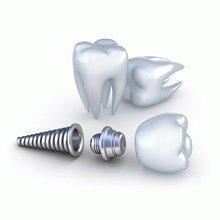 Зубная <br> имплантация